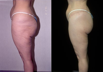 50-year-old woman treated with a Thigh Lift. after 574586