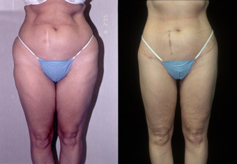 50-year-old woman treated with a Thigh Lift. before 574586