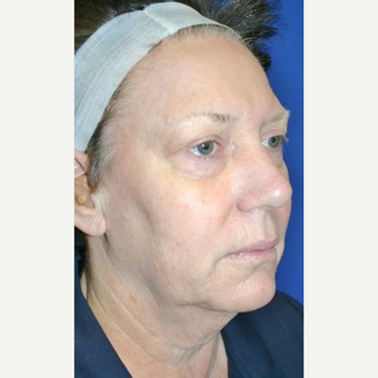 55-64 year old woman treated with Neck Lift before 3055626
