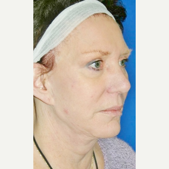 55-64 year old woman treated with Neck Lift after 3055626