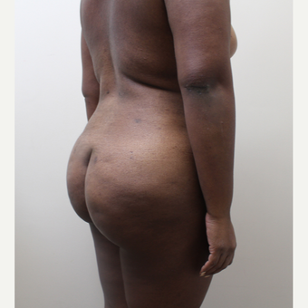 35-44 year old woman treated with Brazilian Butt Lift after 3338563