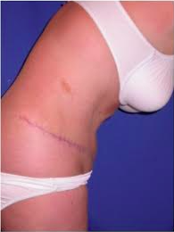 Tummy Tuck after 2529487