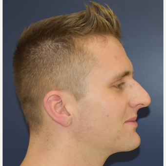 18-24 year old man treated with Rhinoplasty before 3191422