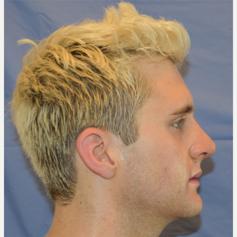 18-24 year old man treated with Rhinoplasty after 3191422