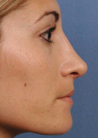 25 year old woman treated with Rhinoplasty after 3440003