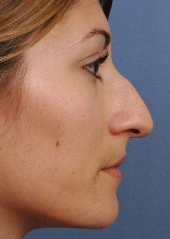 25 year old woman treated with Rhinoplasty before 3440003