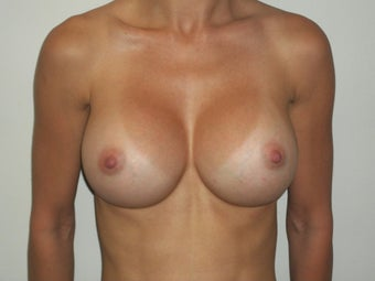 Breast Augmentation after 386385