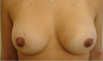 30 y.o. woman, caucasian, weight 52 kg, 1,68 height, with 1 cup size breasts, requesting 1 cup size increase after 750830