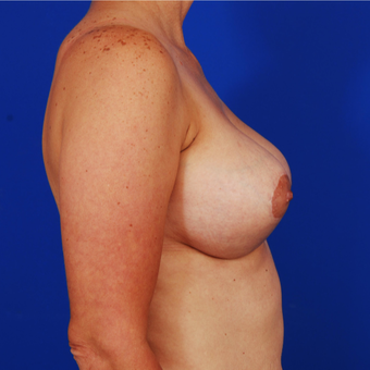 25-34 year old woman treated with Breast Lift with Implants after 3610194