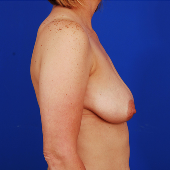 25-34 year old woman treated with Breast Lift with Implants before 3610194