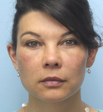 Facial Dermafillers after 1001787