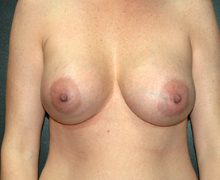 Breast Implants after 3545026