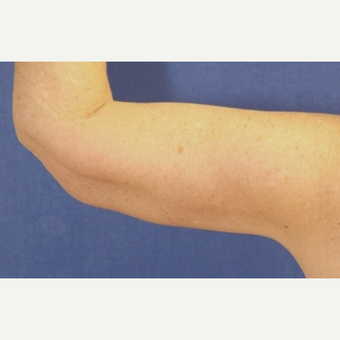 63 year old woman treated with an Arm Lift after 3065269