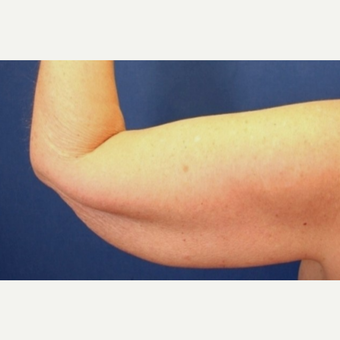 63 year old woman treated with an Arm Lift before 3065269