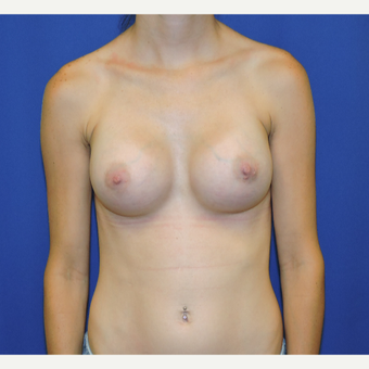 25-34 year old woman treated with Breast Implants after 3331441