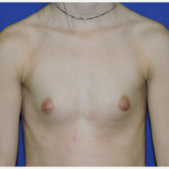 25-34 year old woman treated with Breast Implants before 3331441