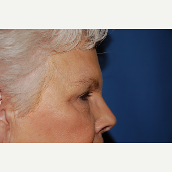 55-64 year old woman treated with Eyelid Surgery after 3782092