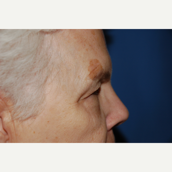 55-64 year old woman treated with Eyelid Surgery before 3782092