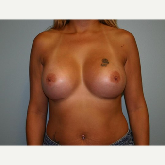Breast Augmentation after 3561950