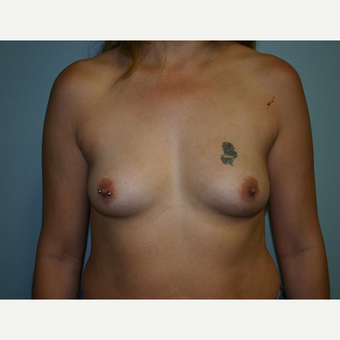 Breast Augmentation before 3561950