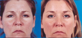 39-year-old woman treated with Botox. before 574299