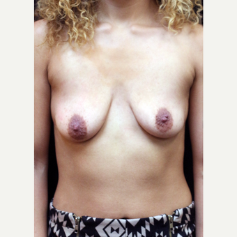 22 year old woman treated with Breast Lift with Implants before 3064282