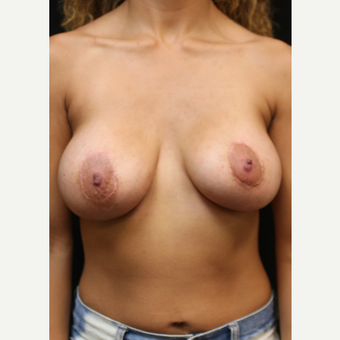 22 year old woman treated with Breast Lift with Implants after 3064282