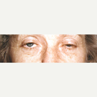 45-54 year old woman treated with Eye Bags Treatment before 3545041