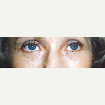 45-54 year old woman treated with Eye Bags Treatment after 3545041