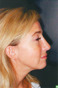 Revision Rhinoplasty after 923070