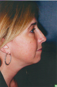 Revision Rhinoplasty before 923070