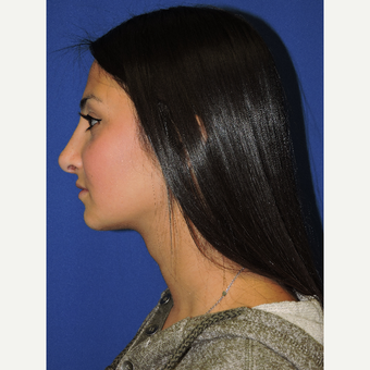 18-24 year old woman treated with Rhinoplasty after 3331398