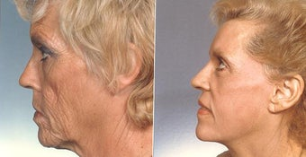 Phenol peel following full face lift for severe facial wrinkling before 1272228