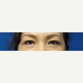 46 year old woman lower blepharoplasty after 2747705