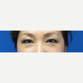 46 year old woman lower blepharoplasty before 2747705