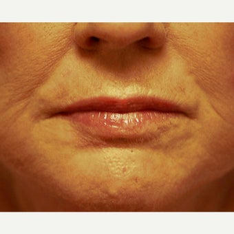 55-64 year old woman treated with Phenol Peel after 1989334