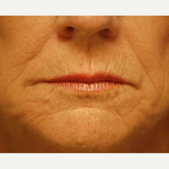 55-64 year old woman treated with Phenol Peel before 1989334