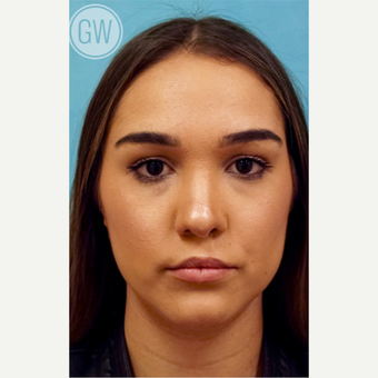 18-24 year old woman treated with Revision Rhinoplasty - Cleft nose with upper lip fat grafting after 3473490