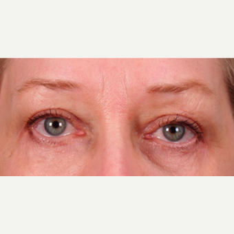 55-64 year old woman treated with Upper and Lower Eyelid Surgery after 3852337