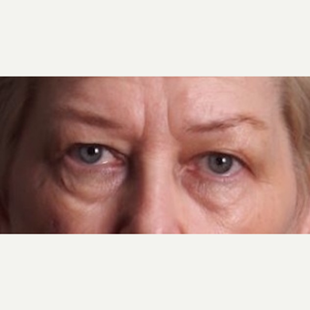 55-64 year old woman treated with Upper and Lower Eyelid Surgery before 3852337