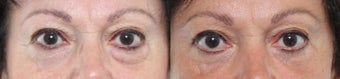 55-64 year old woman treated with Eyelid Surgery 3221411