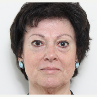 55-64 year old woman treated with Eyelid Surgery before 3221411