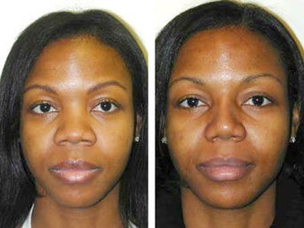 African American Rhinoplasty before 43803