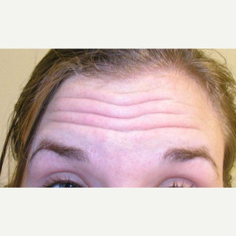 18-24 year old woman treated with Botox