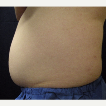 18-24 year old man treated with CoolSculpting before 3680184