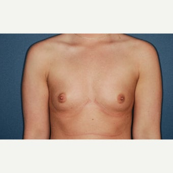 25-34 year old woman treated with Breast Augmentation before 2277053