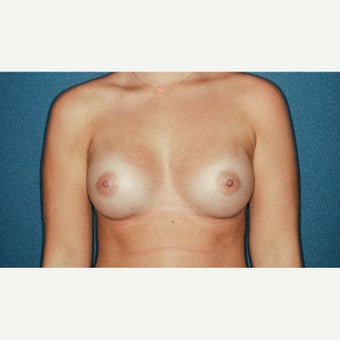25-34 year old woman treated with Breast Augmentation after 2277053
