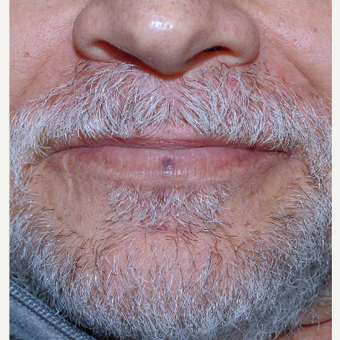 55-64 year old man treated with IPL