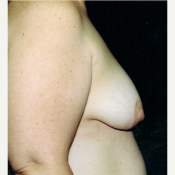35-44 year old woman treated with Breast Lift with Implants before 3236172