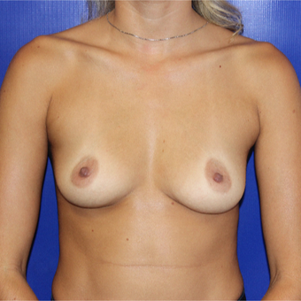 25-34 year old woman treated with Breast Augmentation before 3212070